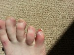 Toe Injury