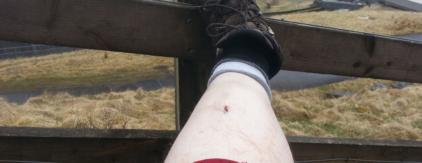 Schoolboy error as I trip on the way up Sweetshaw Brae and cut my leg deeply